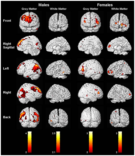 brain sex differences amygdala brain in Torquay
