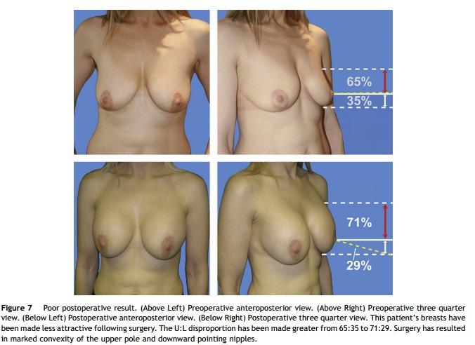 unschöne Brüste