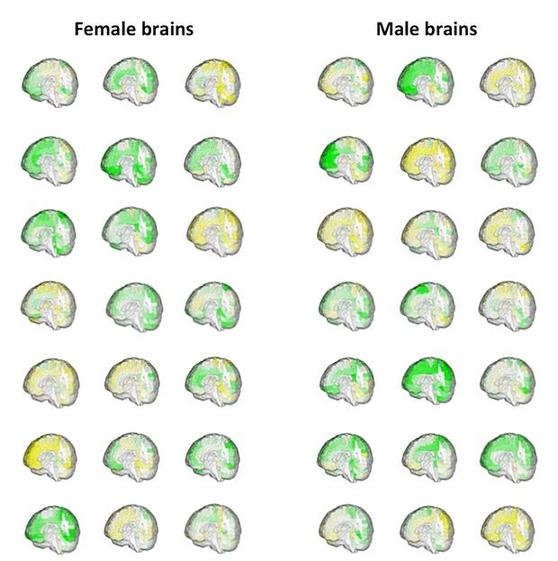 männliche und weibliche Gehirne