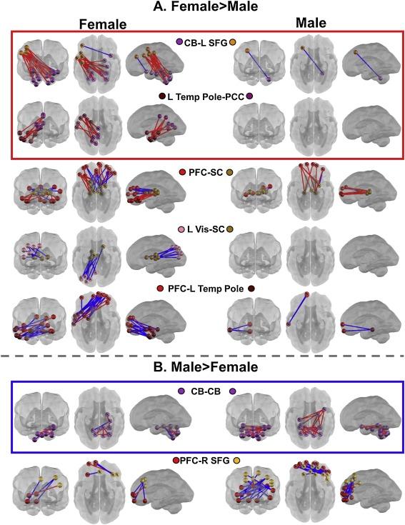 Geschlechterunterschiede Gehirn Fetus